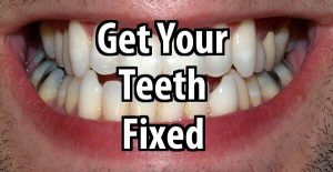 Why You Should Get Your Teeth Fixed