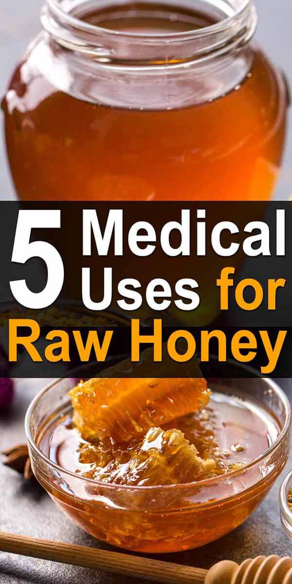 5 Medical Uses for Raw Honey
