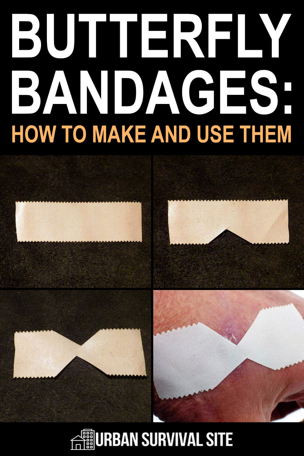 Butterfly Bandages: How To Make and Use Them